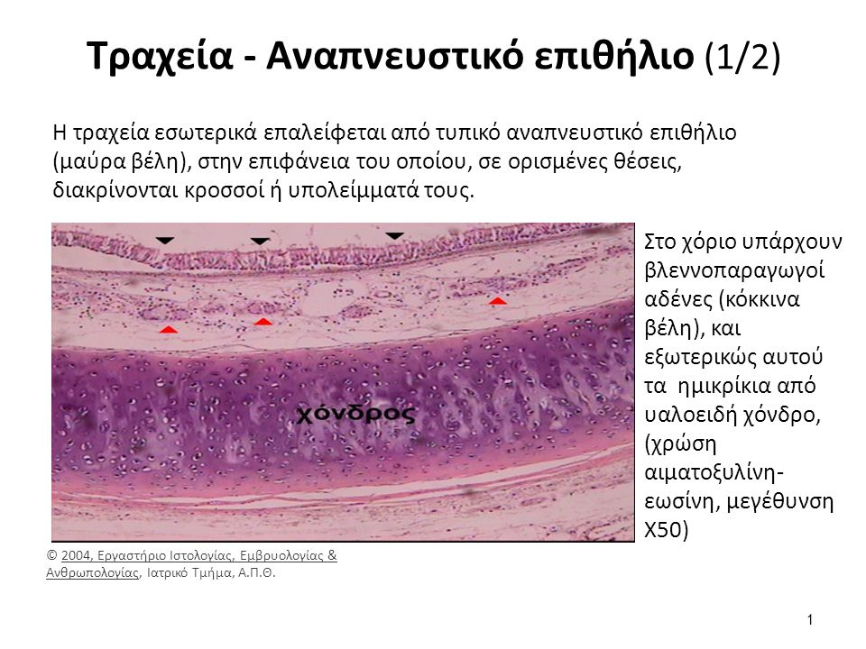 Τραχεία - Αναπνευστικό επιθήλιο (1/2) Η τραχεία εσωτερικά επαλείφεται από τυπικό αναπνευστικό επιθήλιο (μαύρα βέλη), στην επιφάνεια του οποίου, σε ορισμένες θέσεις, διακρίνονται κροσσοί ή υπολείμματά τους.