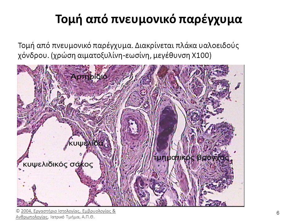Τελικό βρογχιόλιο (1) ο μυϊκός του χιτώνας, (2) οι κυψελωτοί πόροι και (3)οι πνευμονικές κυψελίδες, ενώ δεν υφίσταται υαλοειδής χόνδρος.