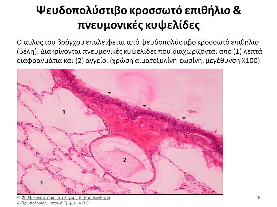 Βρόγχος Μεγάλη μεγέθυνση της ελεύθερης επιφάνειας του καλυπτηρίου επιθηλίου του βρόγχου, η οποία δείχνει το ψευδοπολύστιβο επιθήλιό του, και τους πολυάριθμους κροσσούς του (βέλη), (χρώση αιματοξυλίνη-εωσίνη, Χ400) © 2004, Εργαστήριο Ιστολογίας, Εμβρυολογίας & Ανθρωπολογίας, Ιατρικό Τμήμα, Α.Π.Θ.2004, Εργαστήριο Ιστολογίας, Εμβρυολογίας & Ανθρωπολογίας 9
