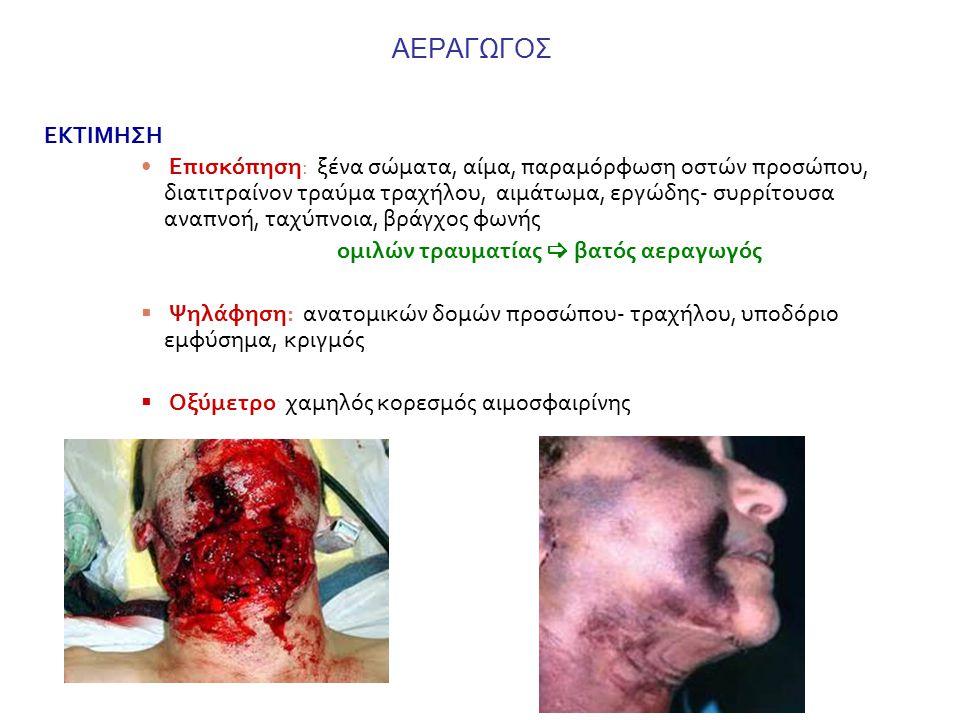 ΑΕΡΑΓΩΓΟΣ ΕΚΤΙΜΗΣΗ Επισκόπηση: ξένα σώματα, αίμα, παραμόρφωση οστών προσώπου, διατιτραίνον τραύμα τραχήλου, αιμάτωμα, εργώδης- συρρίτουσα αναπνοή, ταχύπνοια, βράγχος φωνής ομιλών τραυματίας  βατός αεραγωγός  Ψηλάφηση: ανατομικών δομών προσώπου- τραχήλου, υποδόριο εμφύσημα, κριγμός  Οξύμετρο: χαμηλός κορεσμός αιμοσφαιρίνης