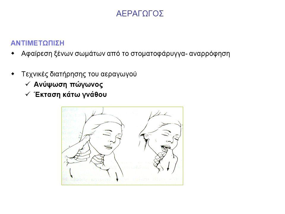 ΑΕΡΑΓΩΓΟΣ ΑΝΤΙΜΕΤΩΠΙΣΗ  Αφαίρεση ξένων σωμάτων από το στοματοφάρυγγα- αναρρόφηση  Τεχνικές διατήρησης του αεραγωγού Ανύψωση πώγωνος Έκταση κάτω γνάθου