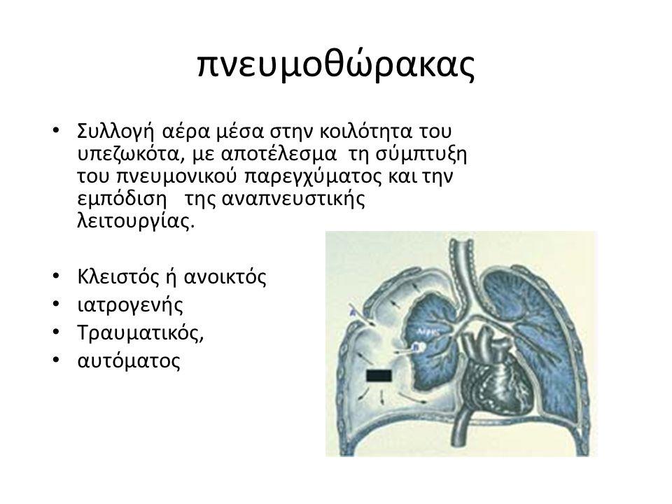 πνευμοθώρακας Συλλογή αέρα μέσα στην κοιλότητα του υπεζωκότα, με αποτέλεσμα τη σύμπτυξη του πνευμονικού παρεγχύματος και την εμπόδιση της αναπνευστική