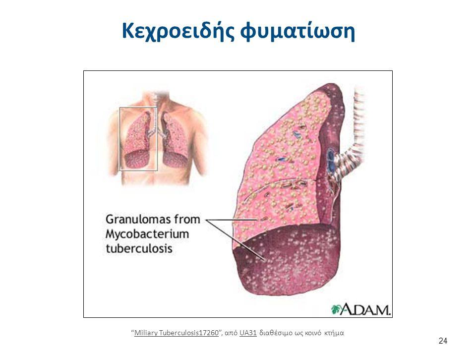 """Κεχροειδής φυματίωση 24 """"Miliary Tuberculosis17260"""", από UA31 διαθέσιμο ως κοινό κτήμαMiliary Tuberculosis17260UA31"""