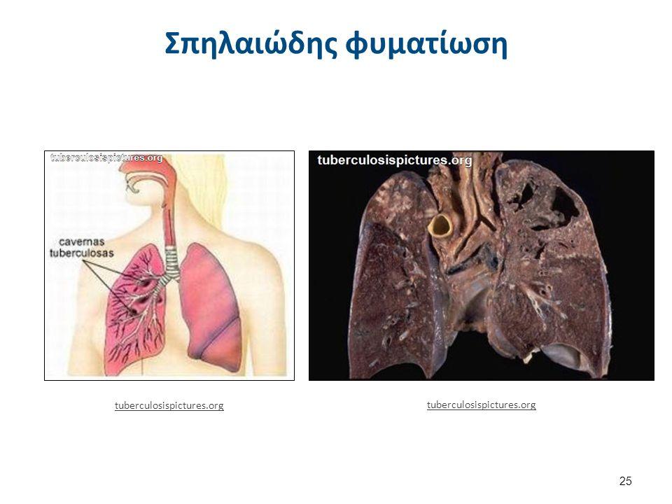 Σπηλαιώδης φυματίωση 25 tuberculosispictures.org