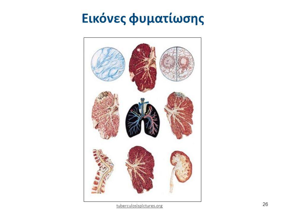 Εικόνες φυματίωσης 26 tuberculosispictures.org