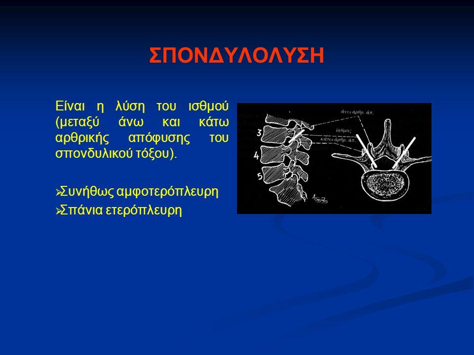 ΣΠΟΝΔΥΛΟΛΥΣΗ Είναι η λύση του ισθμού (μεταξύ άνω και κάτω αρθρικής απόφυσης του σπονδυλικού τόξου).   Συνήθως αμφοτερόπλευρη   Σπάνια ετερόπλευρη