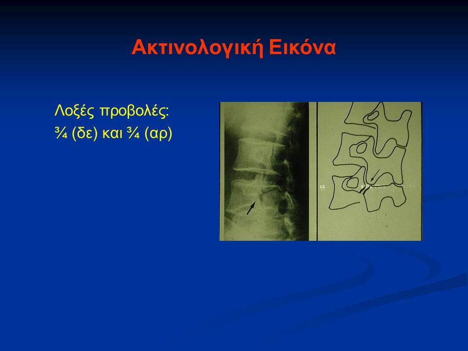 Λοξές προβολές: ¾ (δε) και ¾ (αρ) Ακτινολογική Εικόνα