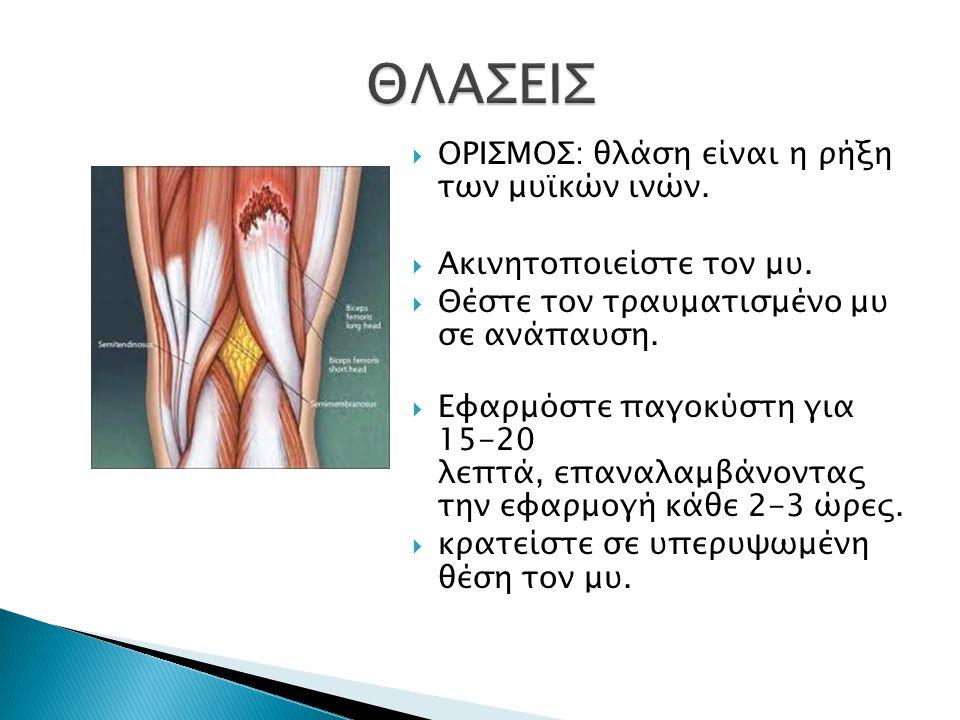  ΟΡΙΣΜΟΣ: θλάση είναι η ρήξη των μυϊκών ινών.  Ακινητοποιείστε τον μυ.  Θέστε τον τραυματισμένο μυ σε ανάπαυση.  Εφαρμόστε παγοκύστη για 15-20 λεπ