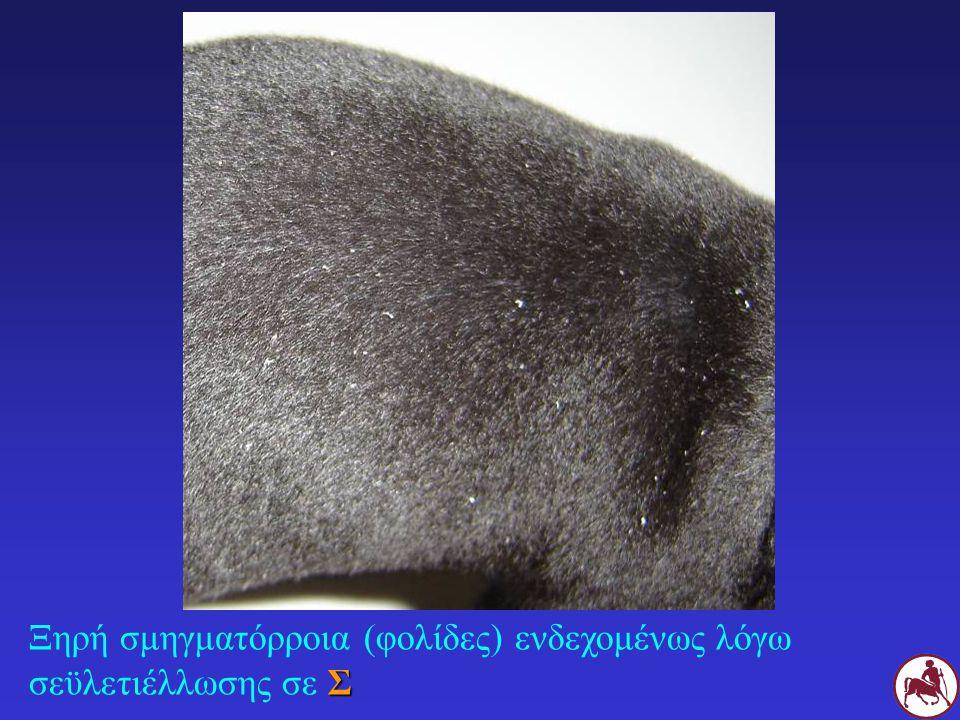 Σ Ξηρή σμηγματόρροια (φολίδες) ενδεχομένως λόγω σεϋλετιέλλωσης σε Σ