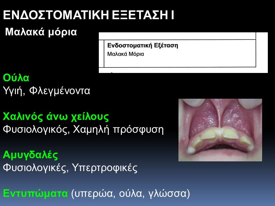 ΕΝΔΟΣΤΟΜΑΤΙΚΗ ΕΞΕΤΑΣΗ I Ούλα Υγιή, Φλεγμένοντα Χαλινός άνω χείλους Φυσιολογικός, Χαμηλή πρόσφυση Αμυγδαλές Φυσιολογικές, Υπερτροφικές Εντυπώματα (υπερ