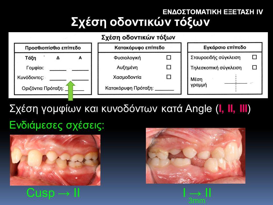 Σχέση οδοντικών τόξων Cusp → II I → II 3mm ΕΝΔΟΣΤΟΜΑΤΙΚΗ ΕΞΕΤΑΣΗ IV Σχέση γομφίων και κυνοδόντων κατά Angle (I, II, III) Ενδιάμεσες σχέσεις: