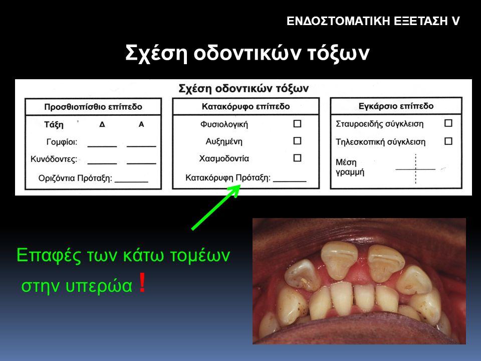 Σχέση οδοντικών τόξων Eπαφές των κάτω τομέων στην υπερώα ! ΕΝΔΟΣΤΟΜΑΤΙΚΗ ΕΞΕΤΑΣΗ V