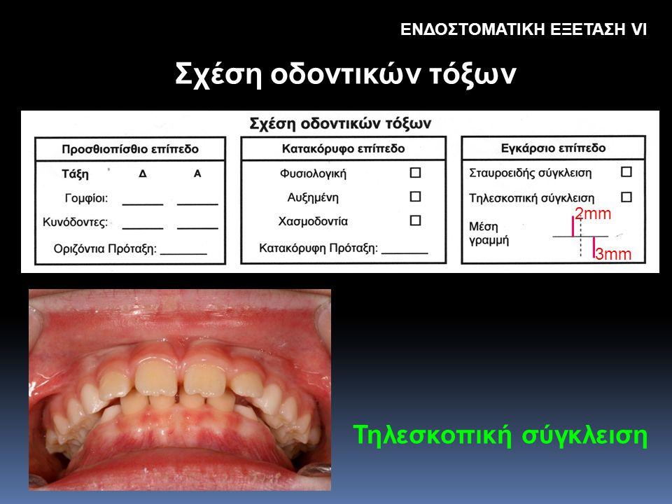 Σχέση οδοντικών τόξων Τηλεσκοπική σύγκλειση ΕΝΔΟΣΤΟΜΑΤΙΚΗ ΕΞΕΤΑΣΗ VΙ 2mm 3mm