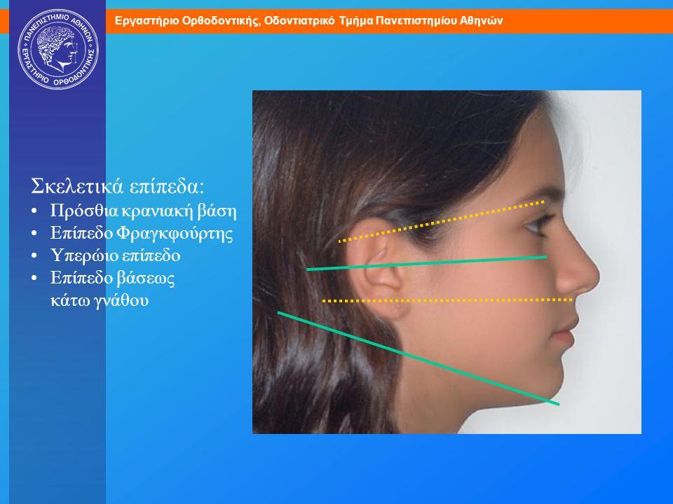 Εργαστήριο Ορθοδοντικής, Οδοντιατρικό Τμήμα Πανεπιστημίου Αθηνών Σκελετικά επίπεδα: Πρόσθια κρανιακή βάση Επίπεδο Φραγκφούρτης Υπερώιο επίπεδο Επίπεδο