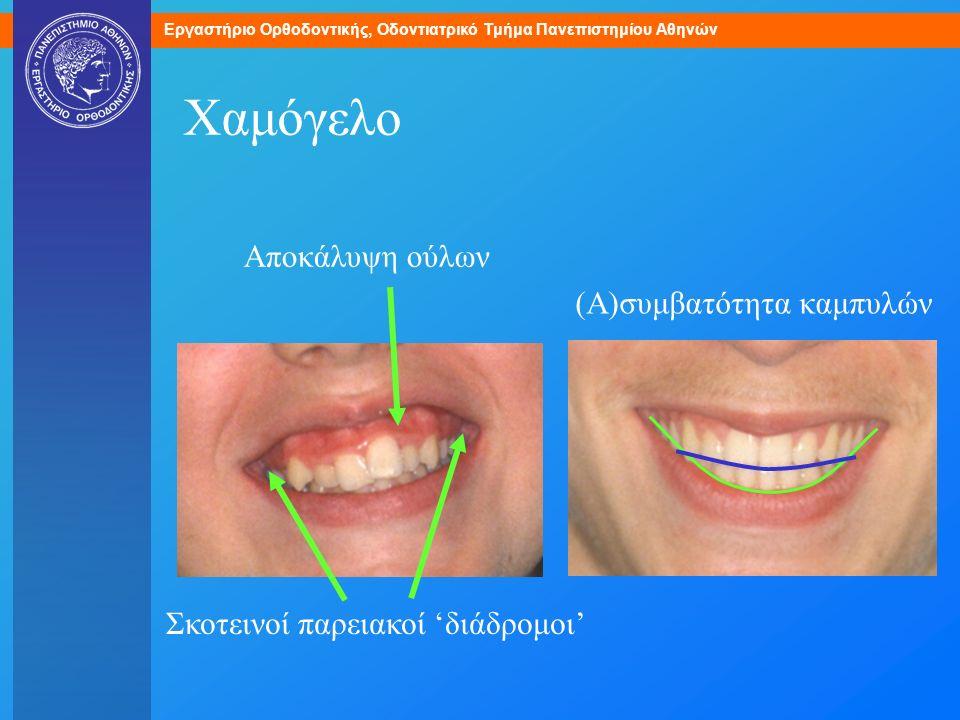 Εργαστήριο Ορθοδοντικής, Οδοντιατρικό Τμήμα Πανεπιστημίου Αθηνών Χαμόγελο Αποκάλυψη ούλων Σκοτεινοί παρειακοί 'διάδρομοι' (Α)συμβατότητα καμπυλών