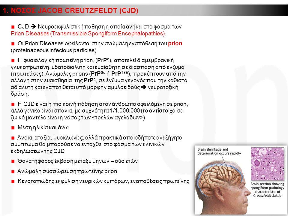 1. ΝΟΣΟΣ JACOB CREUTZFELDT (CJD) CJD  Νευροεκφυλιστική πάθηση η οποία ανήκει στο φάσμα των Prion Diseases (Transmissible Spongiform Encephalopathies)