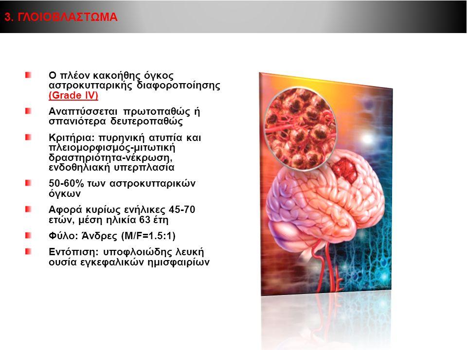Ο πλέον κακοήθης όγκος αστροκυτταρικής διαφοροποίησης (Grade IV) Αναπτύσσεται πρωτοπαθώς ή σπανιότερα δευτεροπαθώς Κριτήρια: πυρηνική ατυπία και πλειο
