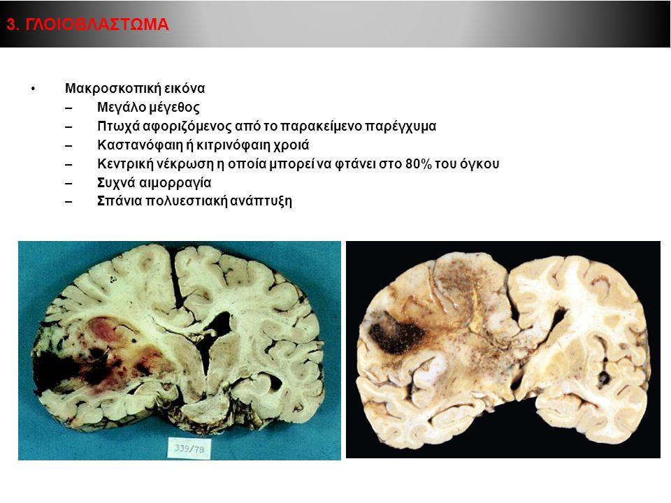 Μακροσκοπική εικόνα –Μεγάλο μέγεθος –Πτωχά αφοριζόμενος από το παρακείμενο παρέγχυμα –Καστανόφαιη ή κιτρινόφαιη χροιά –Κεντρική νέκρωση η οποία μπορεί