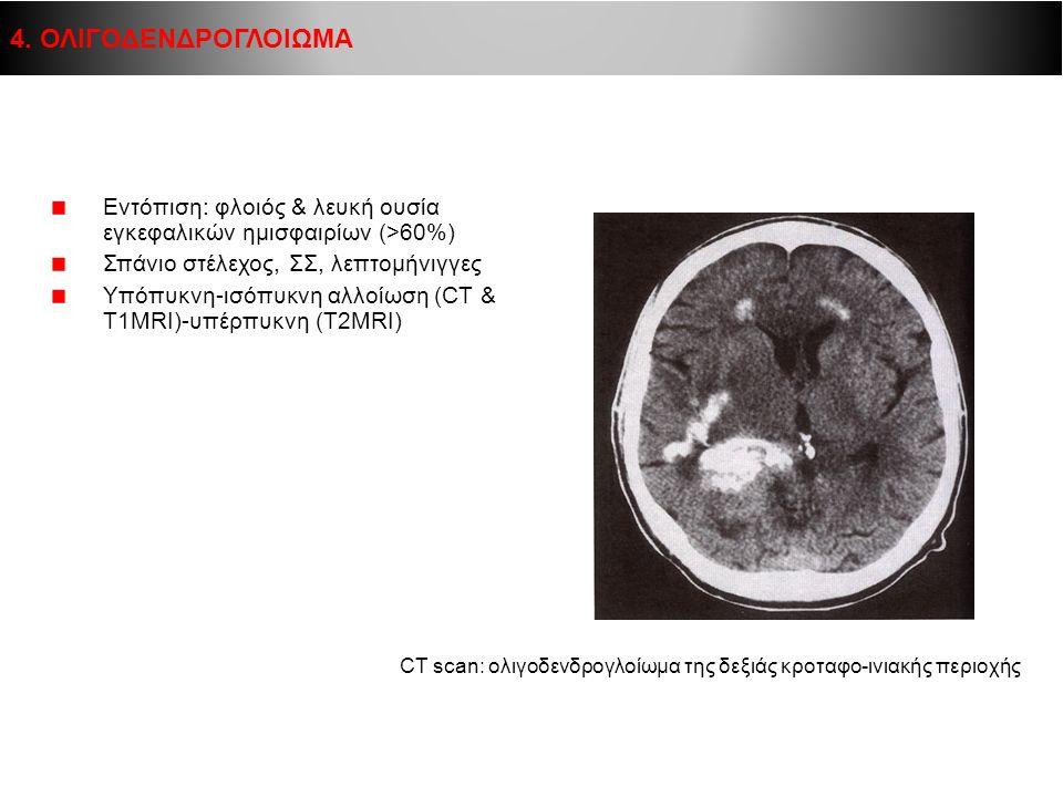 Εντόπιση: φλοιός & λευκή ουσία εγκεφαλικών ημισφαιρίων (>60%) Σπάνιο στέλεχος, ΣΣ, λεπτομήνιγγες Υπόπυκνη-ισόπυκνη αλλοίωση (CT & T1MRI)-υπέρπυκνη (Τ2