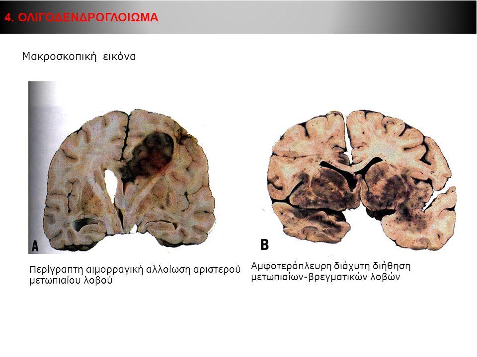 Μακροσκοπική εικόνα Περίγραπτη αιμορραγική αλλοίωση αριστερού μετωπιαίου λοβού Αμφοτερόπλευρη διάχυτη διήθηση μετωπιαίων-βρεγματικών λοβών 4. ΟΛΙΓΟΔΕΝ