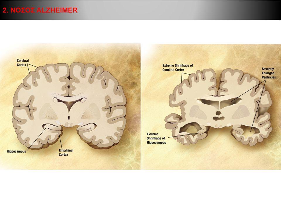Ο εγκέφαλος διαθέτει εκατομμύρια νευρικών κυττάρων και πολλαπλάσιο αριθμό νευρικών συνάψεων Οι νευρώνες επικοινωνούν μεταξύ τους διατηρώντας την ομοιοστασία τους (μεταβολισμός) αλλά και μεταφέροντας μηνύματα (σηματοδοτικός ρόλος) Οι λειτουργίες αυτές παραβλάπτονται σημαντικά στη νόσο Alzheimer 2.