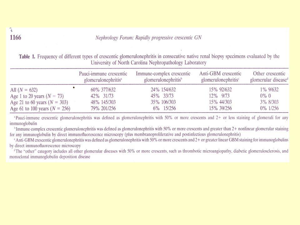 Ταχέως εξελισσόμενη σπειραματονεφρίτιδα Η anti-GBM και η ΑΝCA ΣΝ αποτελούν κατά σειρά τις πιο επιθετικές μορφές ΣΝ με την υψηλότερη συχνότητα οξείας νεφρικής ανεπάρκειας και τα υψηλότερα ποσοστά μηνοειδών σχηματισμών κατά τη διάγνωση.