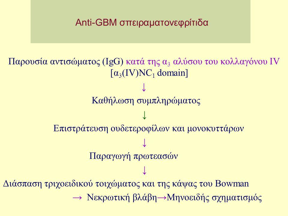 Anti-GBM σπειραματονεφρίτιδα Παρουσία αντισώματος (IgG) κατά της α 3 αλύσου του κολλαγόνου IV [α 3 (IV)NC 1 domain] ↓ Καθήλωση συμπληρώματος ↓ Επιστρά