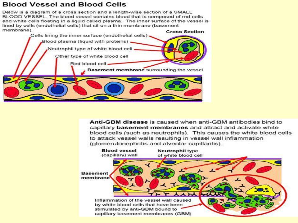 Anti-GBM σπειραματονεφρίτιδα anti-GBM ΣΝ σε μεταμοσχευμένους με νόσο Alport (μεταλλάξεις στις α3, α4, α5 αλυσίδες του κολλαγόνου IV) ↓ Ο λήπτης αναπτύσσει Ab στο «άγνωστο» GBM αντιγόνο του μοσχεύματος ↓ Αg-Ab στις σπειραματικές βασικές μεμβράνες του μοσχεύματος ↓ σπειραματονεφρίτιδα Ωστόσο: ΣΝ → ↓% μεταμοσχευμένων (παρεμβολή γονιδιακών παραγόντων) Παθογένεια
