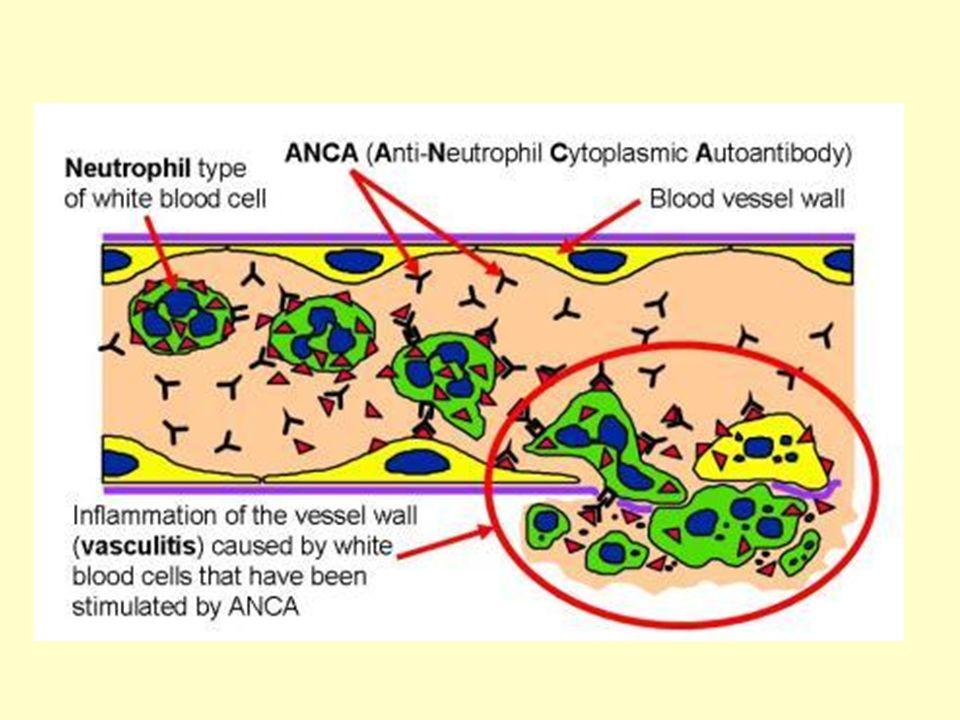 Ένας υποτύπος ANCA αντισωμάτων που κατευθύνονται εναντίον της LAMP2 πρωτεΐνης (lysosomal associated membrane protein 2) ανευρίσκεται σε >90% των ΑΝCA+ ασθενών με ανοσοπενική ταχέως εξελισσομένη σπειραματονεφρίτιδα.