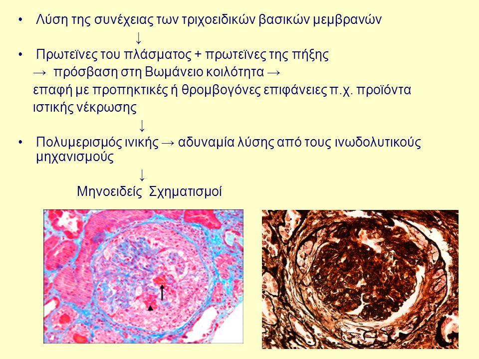 Λύση της συνέχειας των τριχοειδικών βασικών μεμβρανών ↓ Πρωτεϊνες του πλάσματος + πρωτεϊνες της πήξης → πρόσβαση στη Βωμάνειο κοιλότητα → επαφή με προ