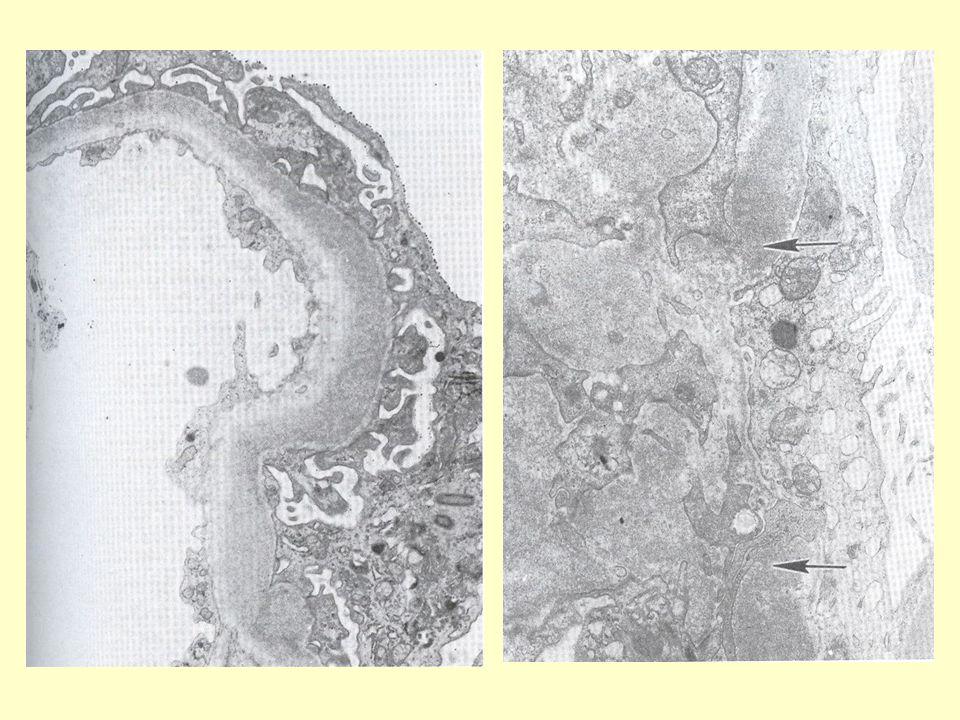 ΜΗΝΟΕΙΔΕΙΣ ΣΧΗΜΑΤΙΣΜΟΙ Αποτέλεσμα υπερπλασίας των τοιχωματικών κυττάρων της Βωμανείου κάψας με την ινική να χρησιμεύει ως σκαλωσιά και ως μιτογόνος παράγοντας.