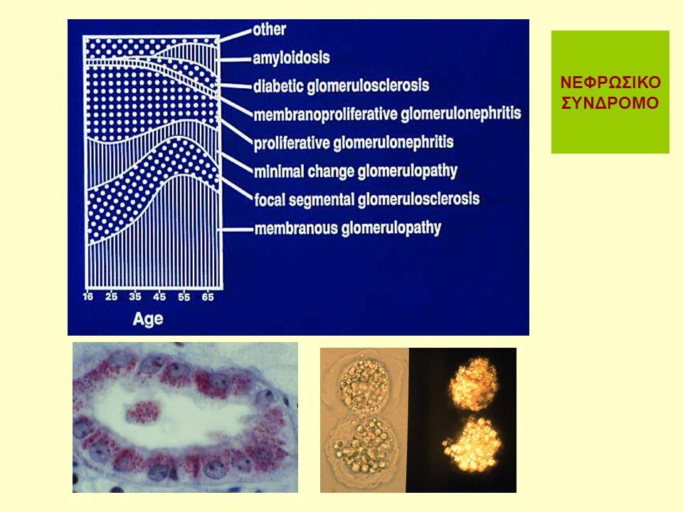 Σπειραματικές νόσοι - Κλινικά σύνδρομα Οξεία σπειραματονεφρίτιδα Νεφριτιδικό σύνδρομο Αιματουρία σπειραματικής προέλευσης Eρυθροκυτταρικοί κύλινδροι Πρωτεϊνουρία Μείωση του GFR / Ολιγουρία Υπέρταση Ταχέως εξελισσόμενη σπειραματονεφρίτιδα >50% απώλεια της νεφρικής λειτουργίας σε εβδομάδες ή μήνες