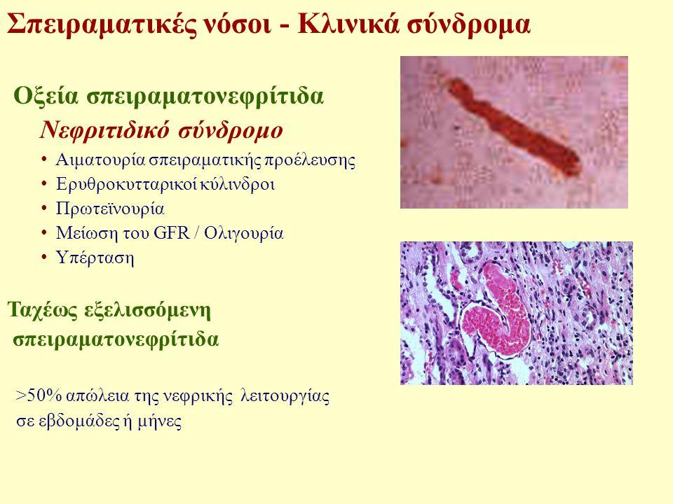 Σπειραματικές νόσοι - Κλινικά σύνδρομα Οξεία σπειραματονεφρίτιδα Οξεία υπερπλαστική ΣΝ Μεταλοιμώδης ΣΝ Εστιακή ή διάχυτη υπερπλαστική ΣΝ IgA νεφροπάθεια Νεφρίτιδα του ΣΕΛ Μεμβρανοϋπερπλαστική ΣΝ Ινιδοειδής ΣΝ