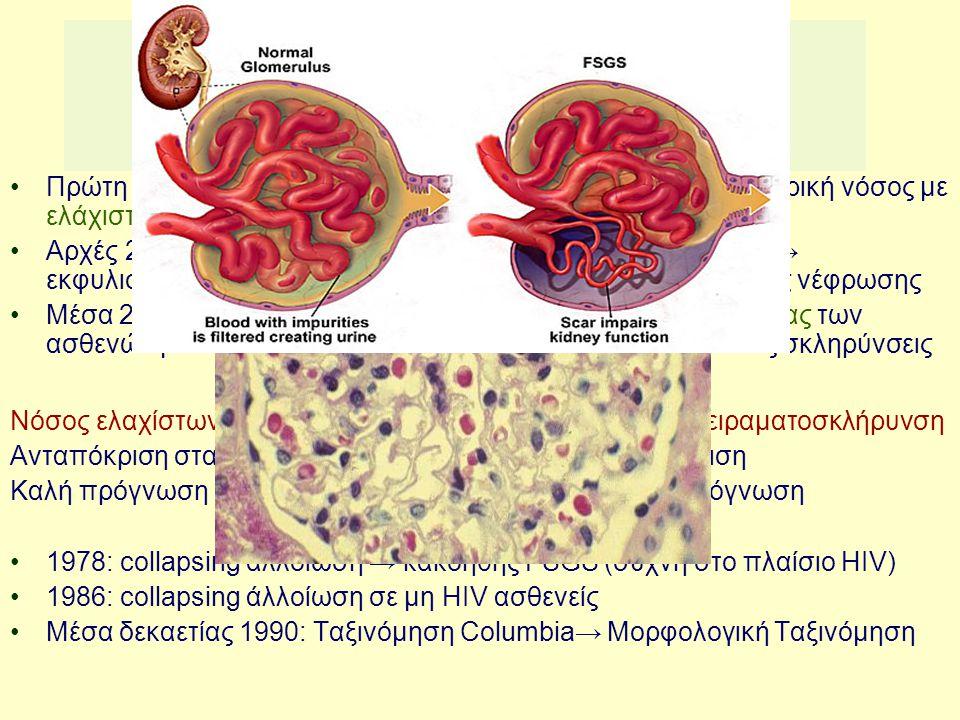 Νεφρωσικό σύνδρομο: χωρίς ανοσοσυμπλέγματα Πρώτη φορά συνδέθηκε με τον όρο λιποειδής νέφρωση → νεφρική νόσος με ελάχιστες σπειραματικές αλλοιώσεις Αρχ