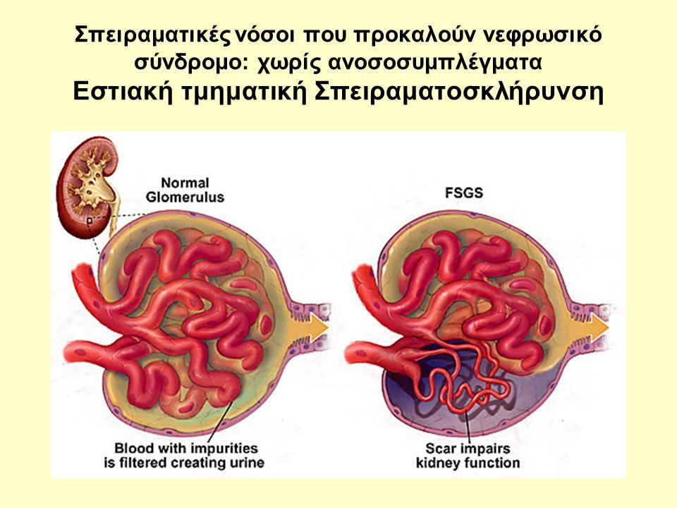 Σπειραματικές νόσοι που προκαλούν νεφρωσικό σύνδρομο: χωρίς ανοσοσυμπλέγματα Εστιακή τμηματική Σπειραματοσκλήρυνση
