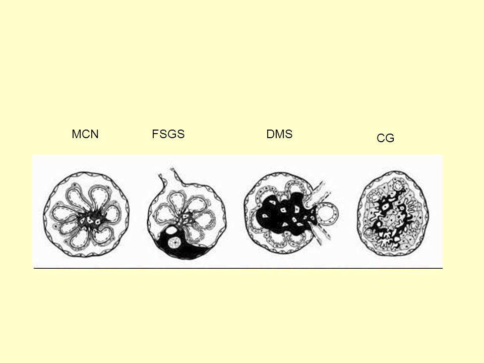 Κi67 Ker Collapsing FSGS Barisoni et al Clin J Am Soc Nephrol 2: 529-542, 2007 ↓P27, P57  κυκλίνηςΑ