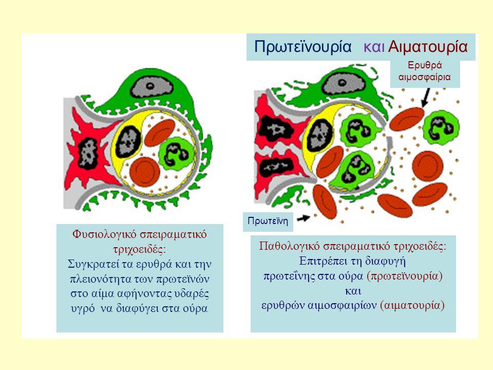 Πρωτεϊνουρία και Αιματουρία Φυσιολογικό σπειραματικό τριχοειδές: Συγκρατεί τα ερυθρά και την πλειονότητα των πρωτεϊνών στο αίμα αφήνοντας υδαρές υγρό