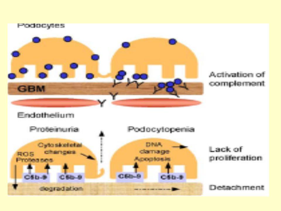 Νεφρωσικό σύνδρομο: με ανοσοσυμπλέγματα Μεμβρανώδης Σπειραματοπάθεια