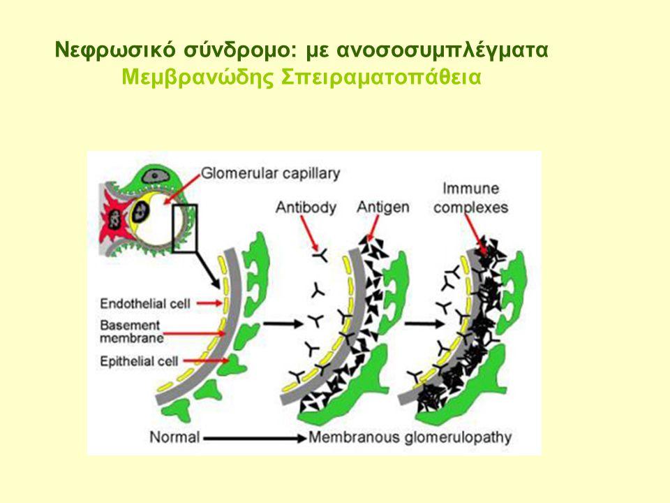 Φυσιολογικό τριχοειδές Μεμβρανώδης Σπειραματοπάθεια