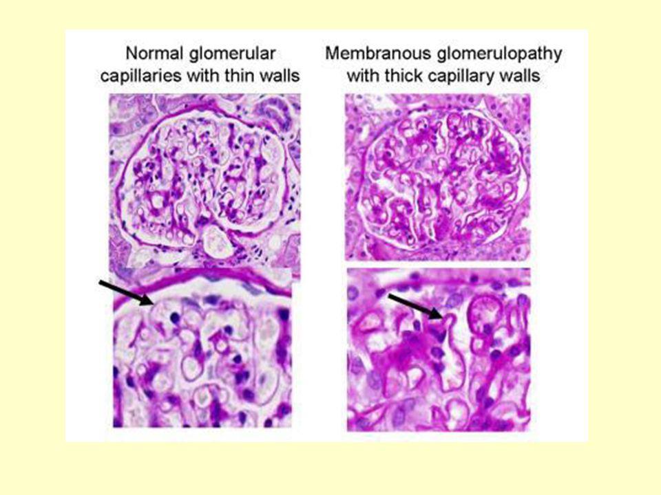 Θεραπευτικές προοπτικές με βάση τα νέα παθογενετικά δεδομένα Στοχευμένες ανοσοκατασταλτικές θεραπείες αντιγόνο-ειδικές Σκοπός: δημιουργία ειδικής ανοχής σε αυτό-αντιδρώντα ανοσολογικά κύτταρα χωρίς να επηρεάζεται η γενική ανοσολογική αντίδραση Προϋπόθεση: ταυτοποίηση των ειδικών παθογόνων επιτόπων 2 επίτοποι έχουν ταυτοποιηθεί στο μόριο της NEP Pierre Ronco & Hanna Debiec Membranous Glomerulopathy: the evolving story Current Opinion in Nephrology 2010, 19: 254-259