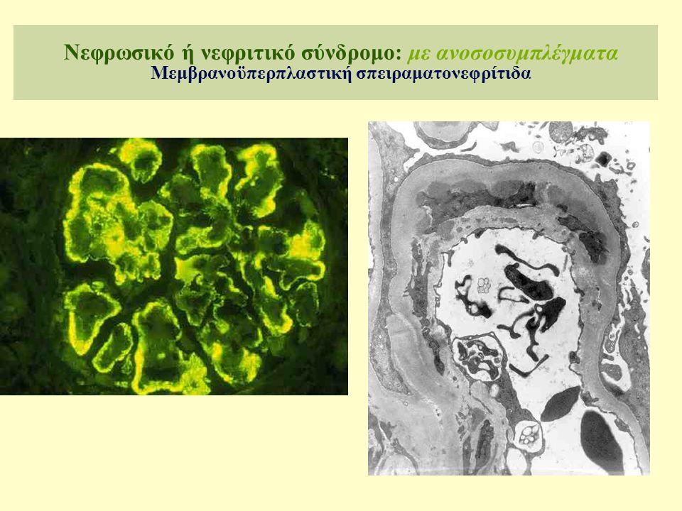Νεφρωσικό ή νεφριτικό σύνδρομο: με ανοσοσυμπλέγματα Μεμβρανοϋπερπλαστική σπειραματονεφρίτιδα