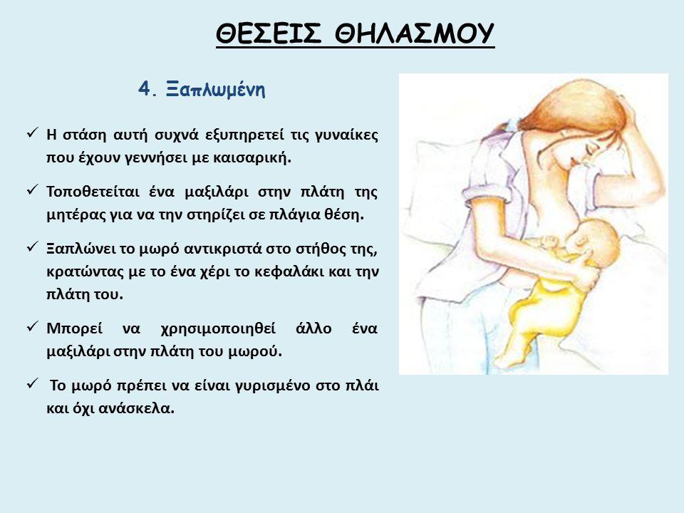 4. Ξαπλωμένη Η στάση αυτή συχνά εξυπηρετεί τις γυναίκες που έχουν γεννήσει με καισαρική. Τοποθετείται ένα μαξιλάρι στην πλάτη της μητέρας για να την σ