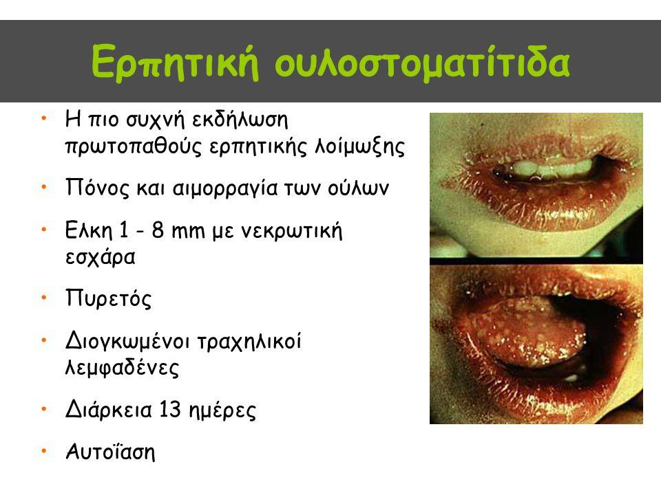 Ερπητική ουλοστοματίτιδα Η πιο συχνή εκδήλωση πρωτοπαθούς ερπητικής λοίμωξης Πόνος και αιμορραγία των ούλων Ελκη 1 - 8 mm με νεκρωτική εσχάρα Πυρετός