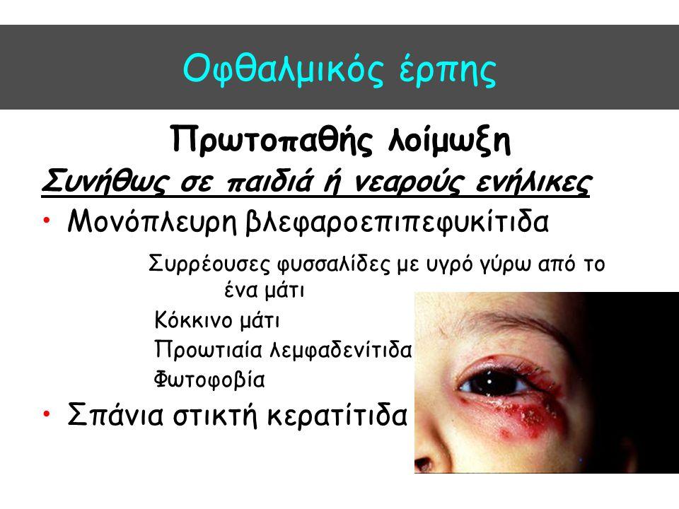 Oφθαλμικός έρπης Πρωτοπαθής λοίμωξη Συνήθως σε παιδιά ή νεαρούς ενήλικες Μονόπλευρη βλεφαροεπιπεφυκίτιδα Συρρέουσες φυσσαλίδες με υγρό γύρω από το ένα