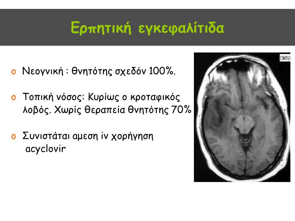 Ερπητική εγκεφαλίτιδα oΝεογνική : θνητότης σχεδόν 100%. oΤοπική νόσος: Kυρίως ο κροταφικός λοβός. Χωρίς θεραπεία θνητότης 70% oΣυνιστάται aμεση iv χορ
