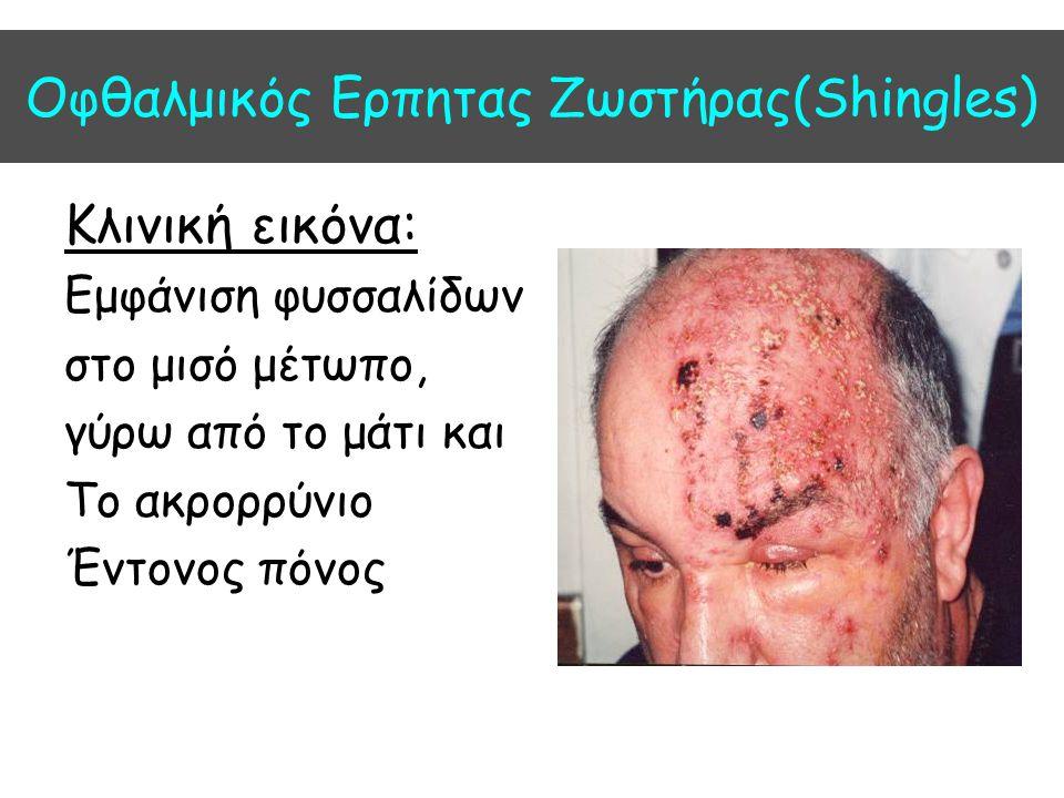 Οφθαλμικός Ερπητας Ζωστήρας(Shingles) Κλινική εικόνα: Εμφάνιση φυσσαλίδων στο μισό μέτωπο, γύρω από το μάτι και Το ακρορρύνιο Έντονος πόνος