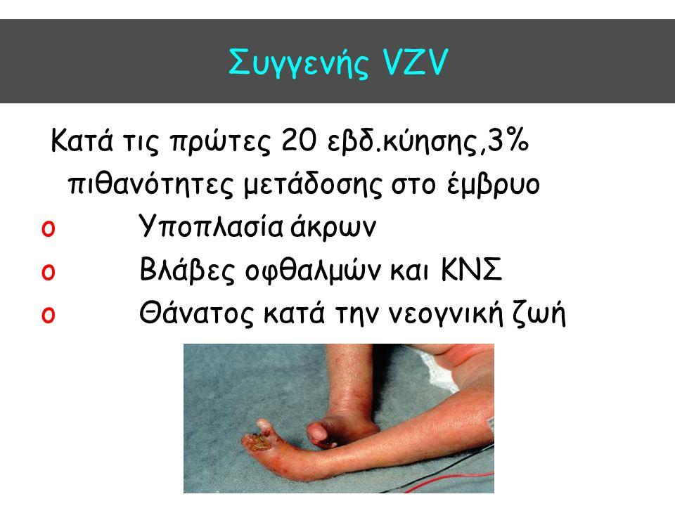 Συγγενής VZV Kατά τις πρώτες 20 εβδ.κύησης,3% πιθανότητες μετάδοσης στο έμβρυο o Υποπλασία άκρων o Βλάβες οφθαλμών και ΚΝΣ o Θάνατος κατά την νεογνική
