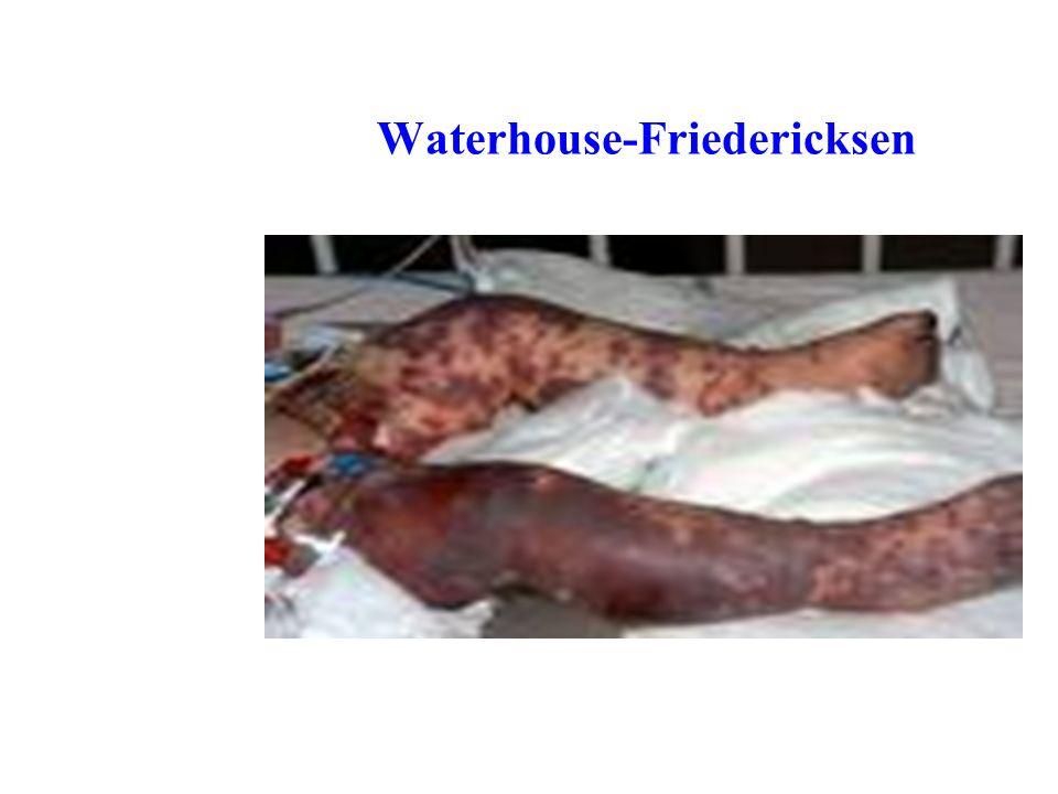 Waterhouse-Friedericksen