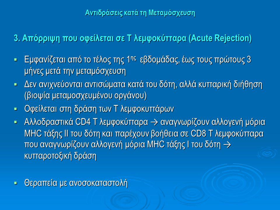 Αντιδράσεις κατά τη Μεταμόσχευση 3. Απόρριψη που οφείλεται σε Τ λεμφοκύτταρα (Acute Rejection)  Εμφανίζεται από το τέλος της 1 ης εβδομάδας, έως τους