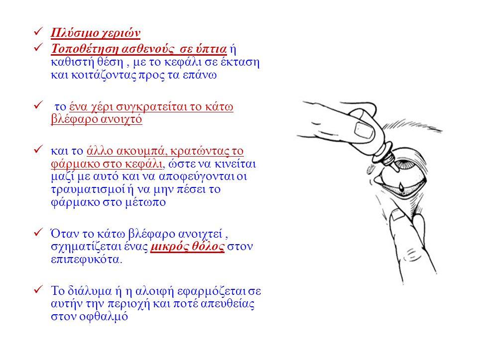 Πλύσιμο χεριών Τοποθέτηση ασθενούς σε ύπτια ή καθιστή θέση, με το κεφάλι σε έκταση και κοιτάζοντας προς τα επάνω το ένα χέρι συγκρατείται το κάτω βλέφ